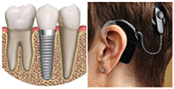 Dental Implants and Cochlear Implant